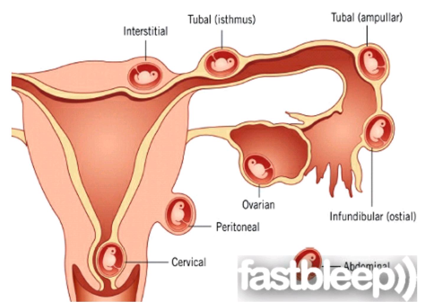 От чего зависит внематочная беременность